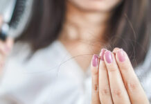 dandruff cause hair loss 1254x627 1 Magazine